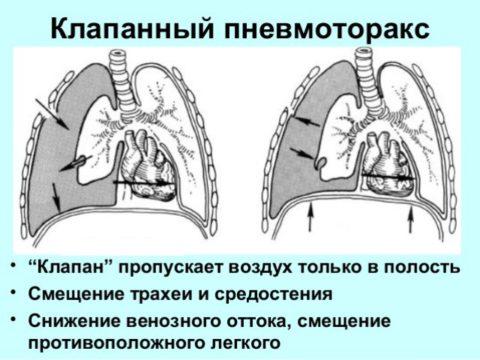 Клапанное повреждение – опасная ситуация
