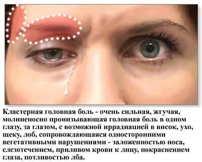 Симптомы кластерной головной боли