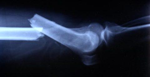 Клинические характеристики и рентгенография сломанной кости в теле человека