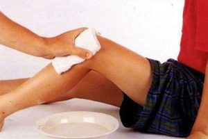 Лечение артроза суставов Димексидом