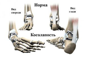 Болят плюсневые суставы
