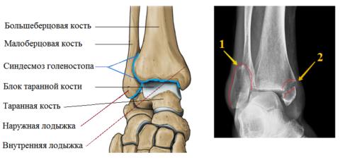 Косой V-образный перелом наружной лодыжки (1) и отрывной на внутренней (2)