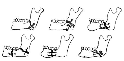 Костный шов выполняется при неосложненных свежих переломах.