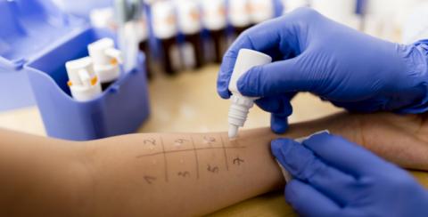 Кожная проба – обязательный метод диагностики.