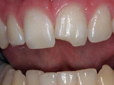 Краевой перелом коронки зуба