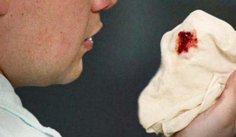 Кровохарканье может быть симптомом туберкулеза.
