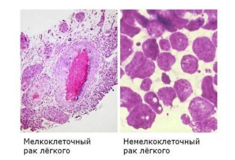 Крупные и мелкие клетки. Самая опасная форма – мелкоклеточный рак