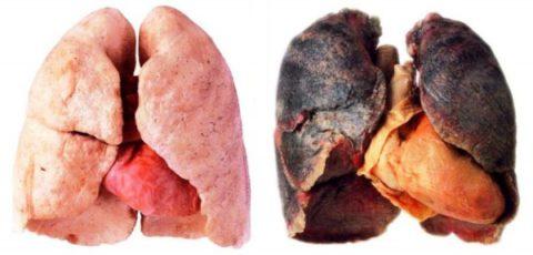 Курение приводит к хроническому бронхиту.