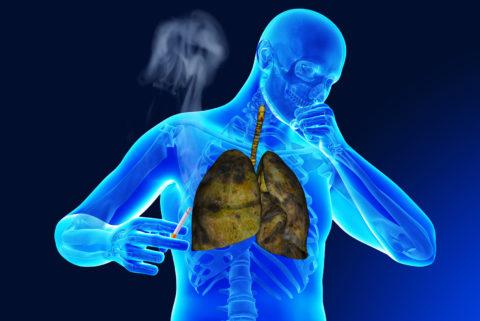 Курение усугубляет состояние пациента