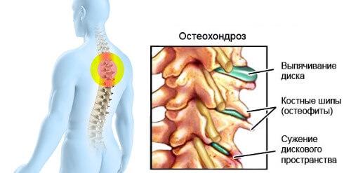 остеохондроз грудного отдела позвоночника симптомы и лечение препараты