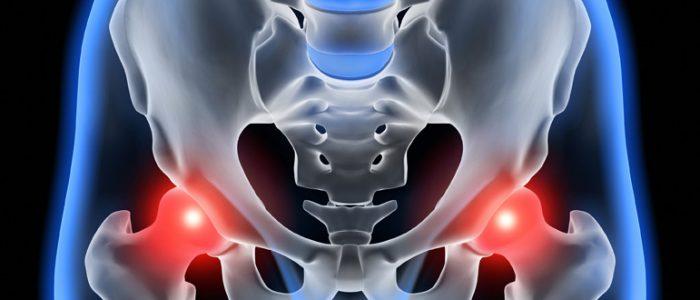 Как вылечить коксартроз тазобедренного сустава без операции?