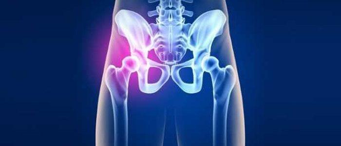 Как лечить тазобедренный сустав в домашних условиях?