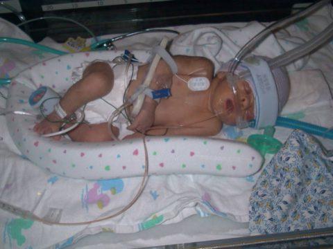 Лечение врожденной пневмонии у новорожденных проводится только в условиях стационара.