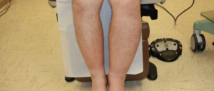 Лимфостаз на ногах