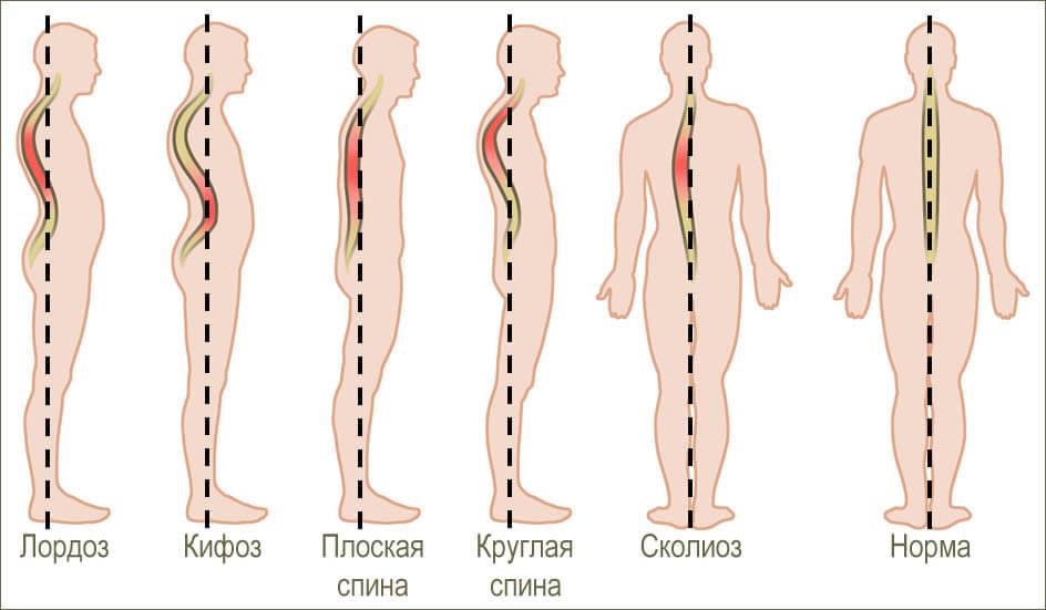 причины защемления нерва в спине