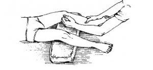 Варусная деформация ног