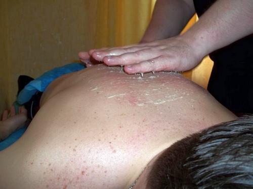 массаж с медом на спине как делать