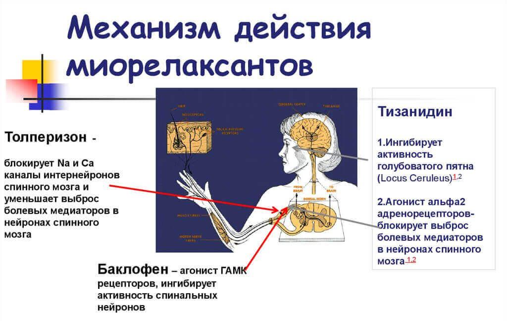 миорелаксанты для снятия мышечных спазмов спины при остеохондрозе