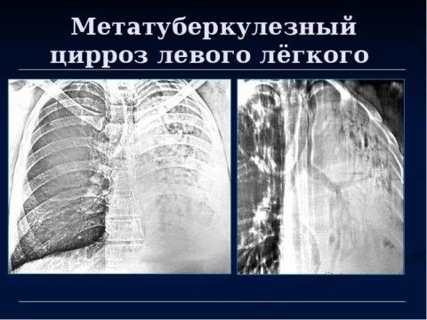 Метатуберкулезный цирроз легких на рентгене