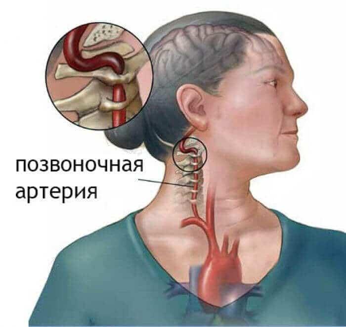 межпозвонковые диски пережимают позвоночные артерии