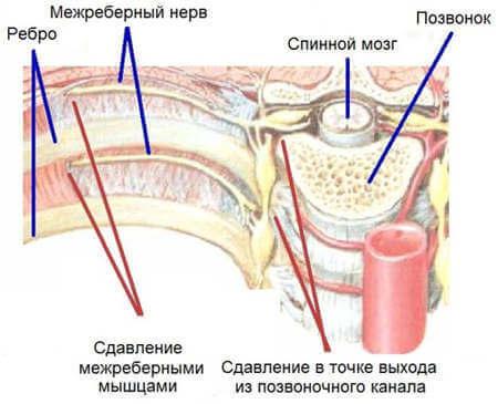 Что такое межрёберная невропатия
