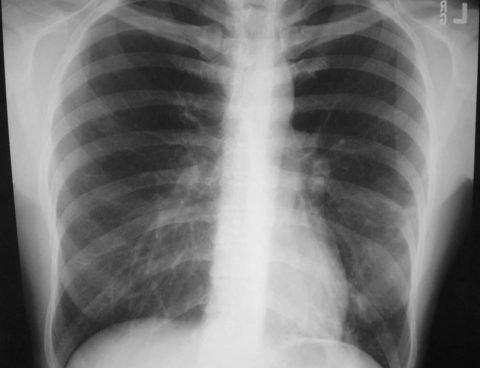 Микоплазменная пневмония