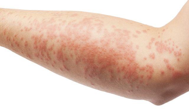 Признаки дерматита