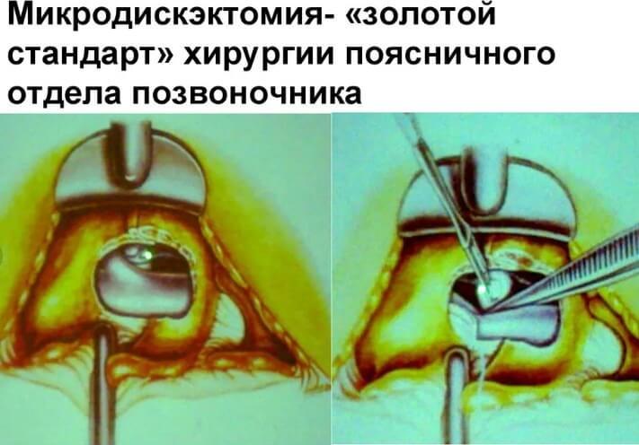 Микродискэктомия диска