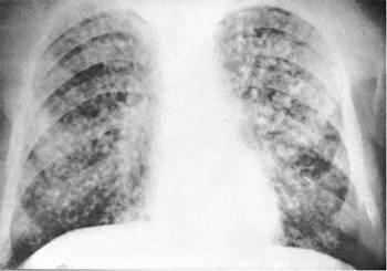 Милиарный туберкулез (картина «звездного неба»)