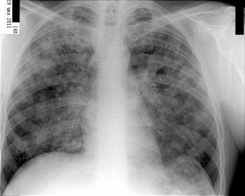 Милиарный туберкулез на рентгенограмме