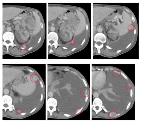 Множественные метастазы рака почки в плевру (КТ с внутривенным контрастированием)