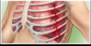 Симптомы перелома или трещины ребра: характерные особенности и отличия повреждений, их диагностика и лечение
