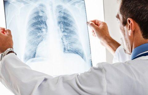 Можно ли выявить рак при помощи рентгенографии.