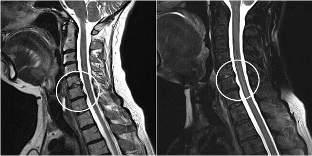 МРТ шейного остеохондроза