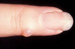 Симптомы и лечение синовиальной кисты