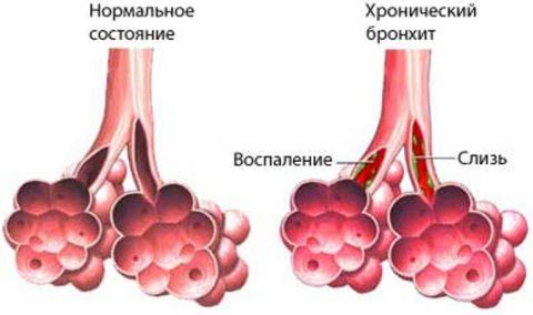 На фото хронический бронхит и нормальное состояние бронхов.