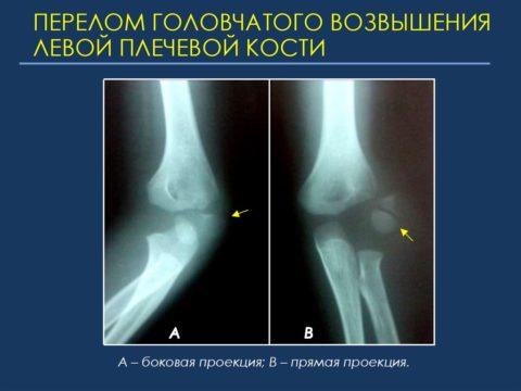 На фото левая рука с переломом головчатого возвышения плечевой кости