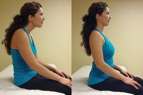 Фото до и после ношения корректора при кифозе