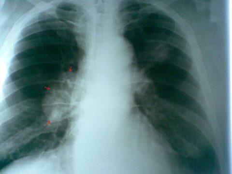 На фото рентген пациента с заболеванием рака легких.