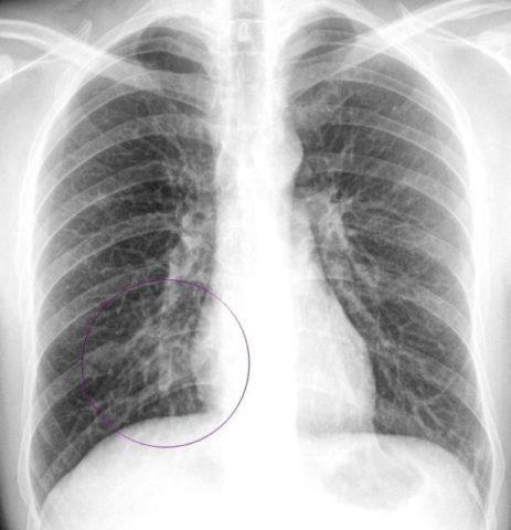 На фото рентген снимок новорожденного с врожденной пневмонией.