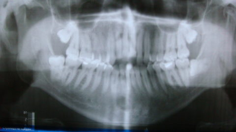 На рентгене обнаружены вывихи и переломы зубов верхней челюсти