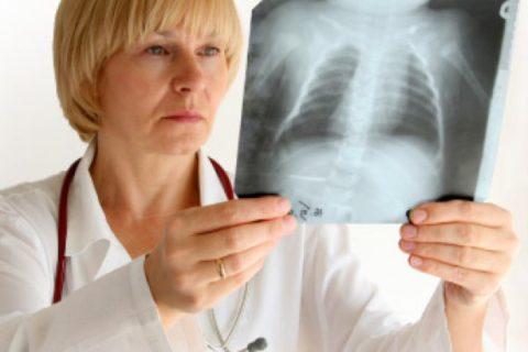 На сегодняшний день рентгенография - это основной метод диагностики болезней легких