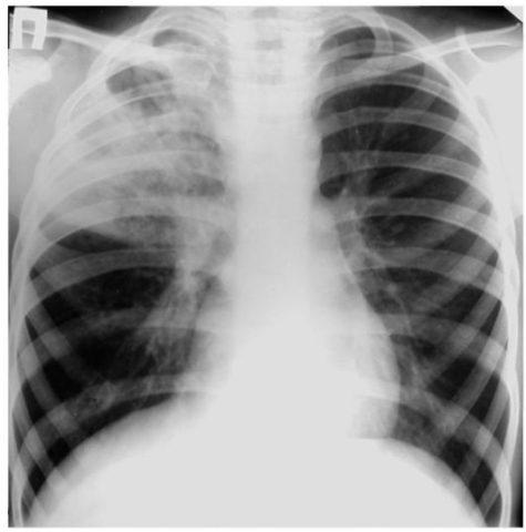 На снимке рентгенографии отчетливо видны очаги воспаления.