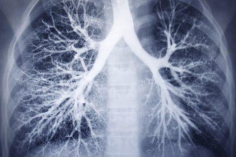 На снимке рентгенограммы отчетливо различимо бронхиальное дерево