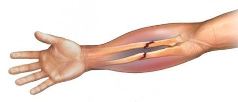 Наиболее распространенные механизмы возникновения переломов руки в разных местах кости