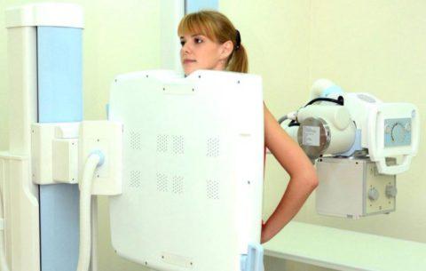 Не стоит проходить флюорографию при планировании беременности - в данном случае полное обследование нужно закончить за месяц или два до возможного зачатия