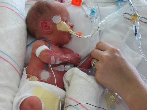 Недоношенный ребенок в кувезе