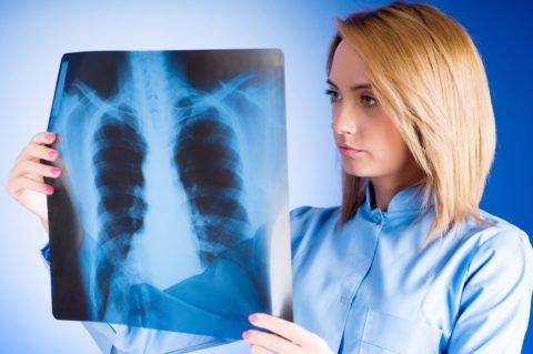 Недуг может проявляться независимо от пола и возраста пациента.