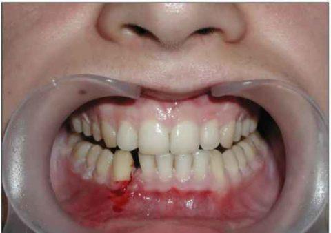 Неправильный прикус может являться признаком серьезной травмы нижней челюсти.