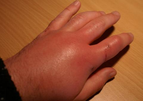 Нередко после укуса кошки возникают воспаление и отек.
